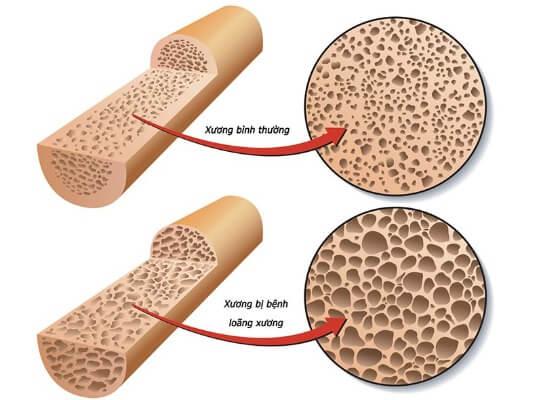 Uống sữa bột canxi giúp cải thiện tình trạng loãng xương thường gặp ở người cao tuổi