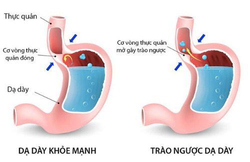 Trào ngược dạ dày gây khó chịu cho bé