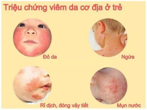 Viêm da cơ địa ở trẻ em khá phổ biến