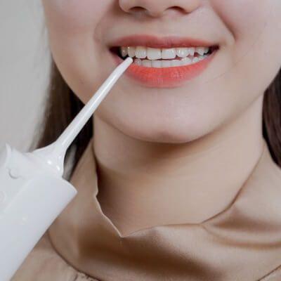 Giảm ố vàng cho răng